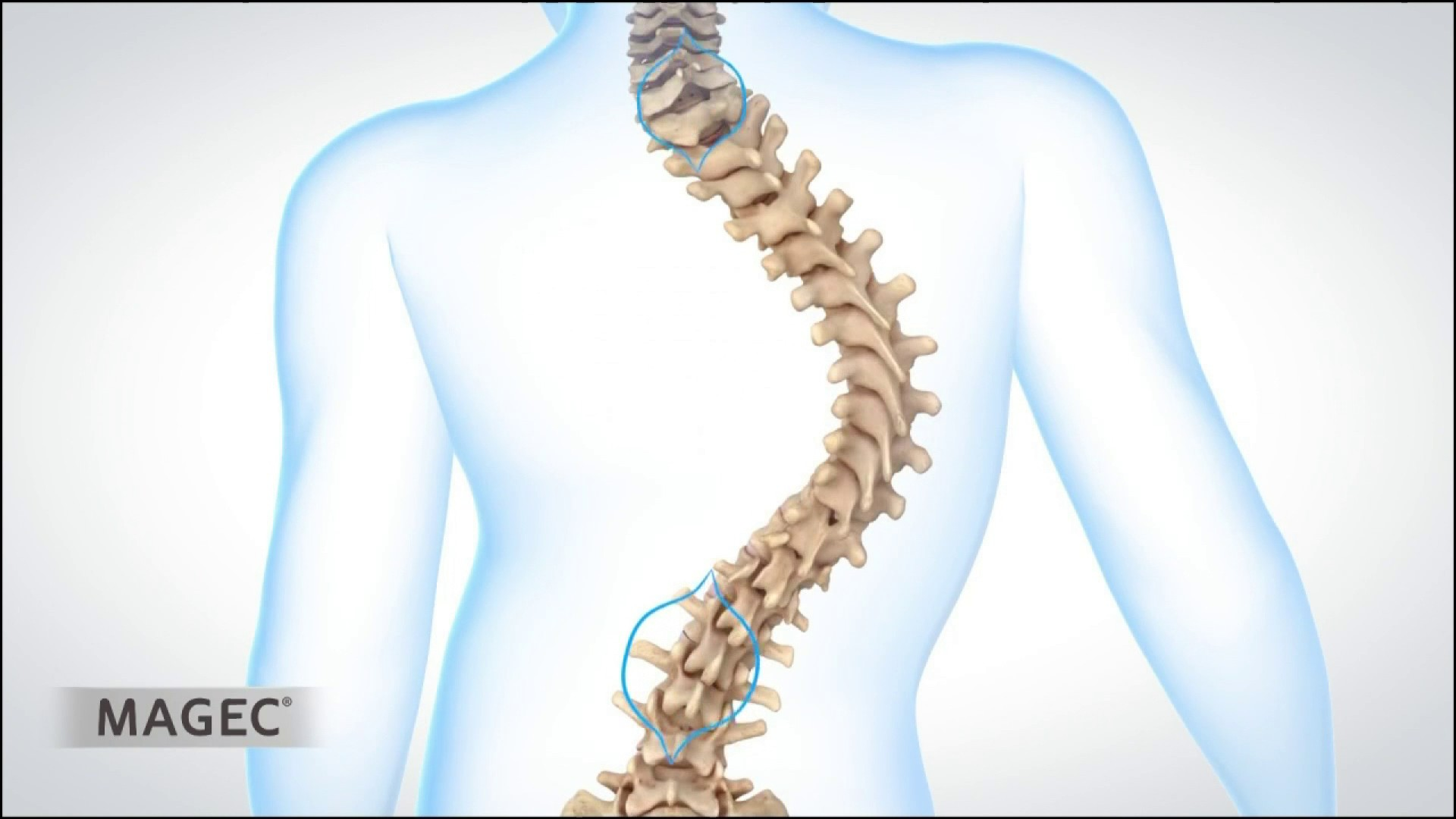 Scoliosis+spine+lengthening+with+magnets+MMM